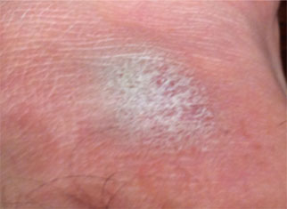 Close up image of skin with eczema flare up.