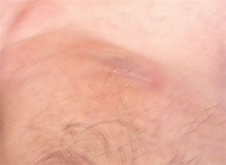 Close up image of skin after treatment for eczema.