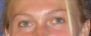 After image of two sets of eyes, close ups of women pictured above.