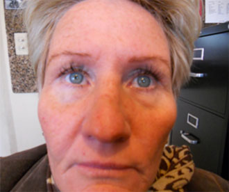 Image of woman with hyperpigmentation.