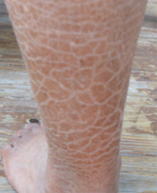 Image of a leg with servere scaling due to very dry skin.
