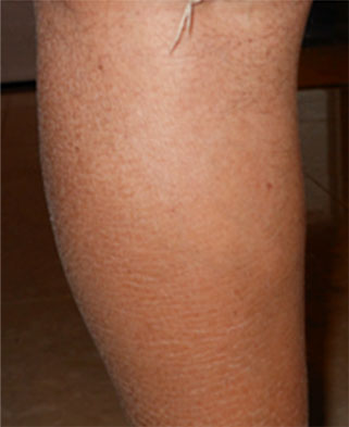 Image of a leg after treatment for servere scaling due to very dry skin.