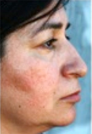 Image of woman suffering from rosacea.