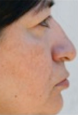 Image of a woman after treatment who suffers from rosacea.